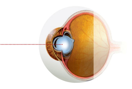 Cataract-and-Refractive-Lens-Surgery
