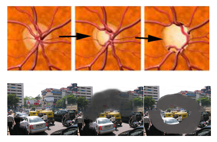 Progressive loss of visual field with corresponding loss optic nerve damage